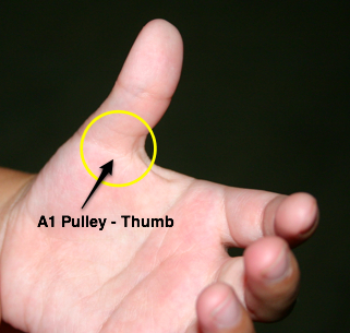 Trigger Finger – Causes, Symptoms, Treatment