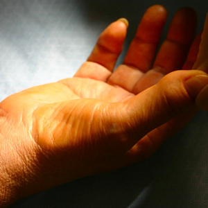 muscle atrophy in the thumb
