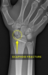 x-ray of fractured scaphoid
