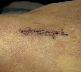 subcuticular suture wound