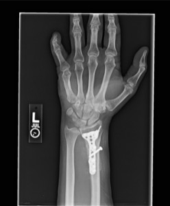 x-ray of wrist plate screws