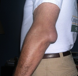 torn bursa elbow)