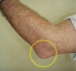 example of Popeye elbow