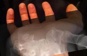 hamate wrist bone