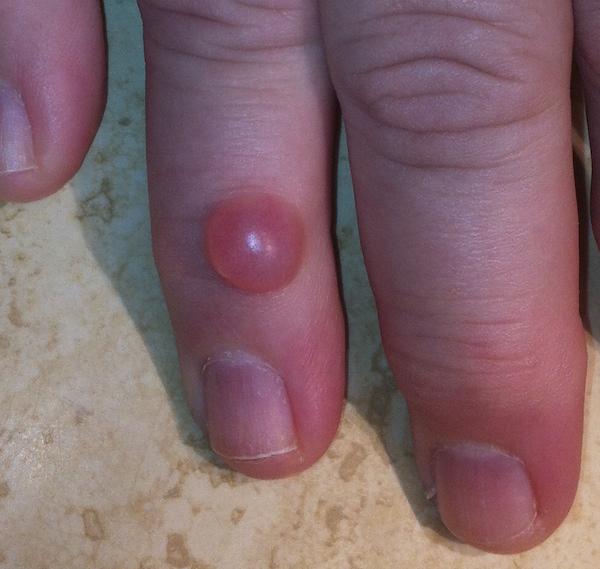 Fingertip Ganglion Cysts