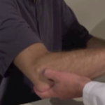 Ganglion Cyst – The Most Common Tumor in The Hand and Wrist